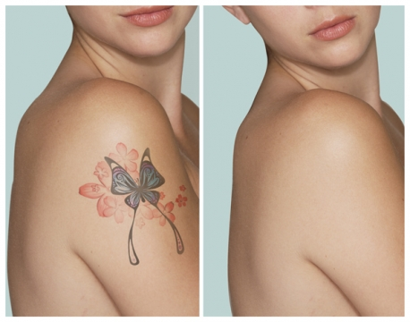 Finding the right tattoo removal clinic
